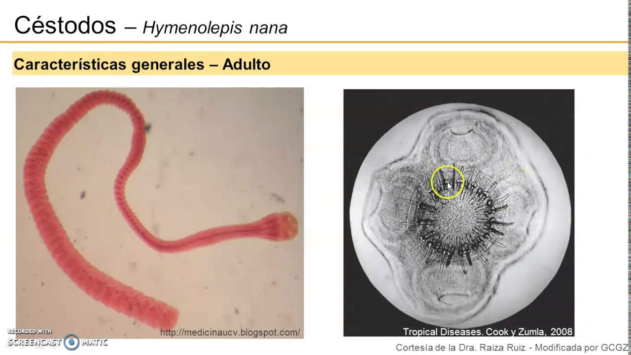 A hymenolepidosis a legegyszerűbb