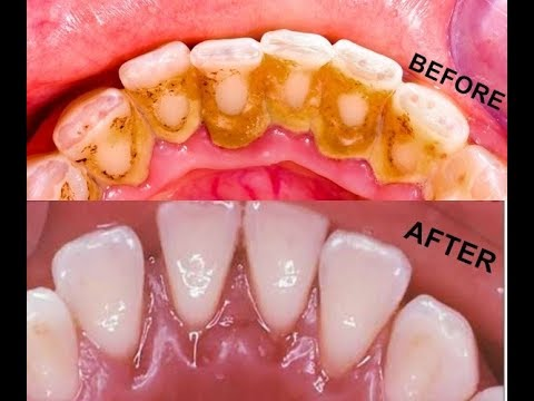 How to Remove Dental Plaque In 2 Minutes Naturally Without Going To The Dentist