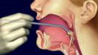 Santa's Helper and Throat Cancer-Mayo Clinic