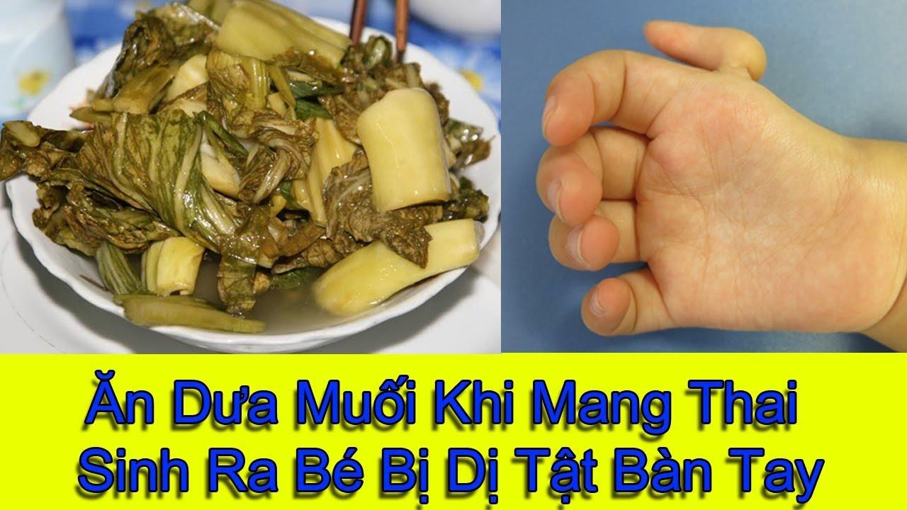 Ăn Dưa Muối Khi Mang Thai Sinh Ra Bé Bị Dị Tật Bàn Tay
