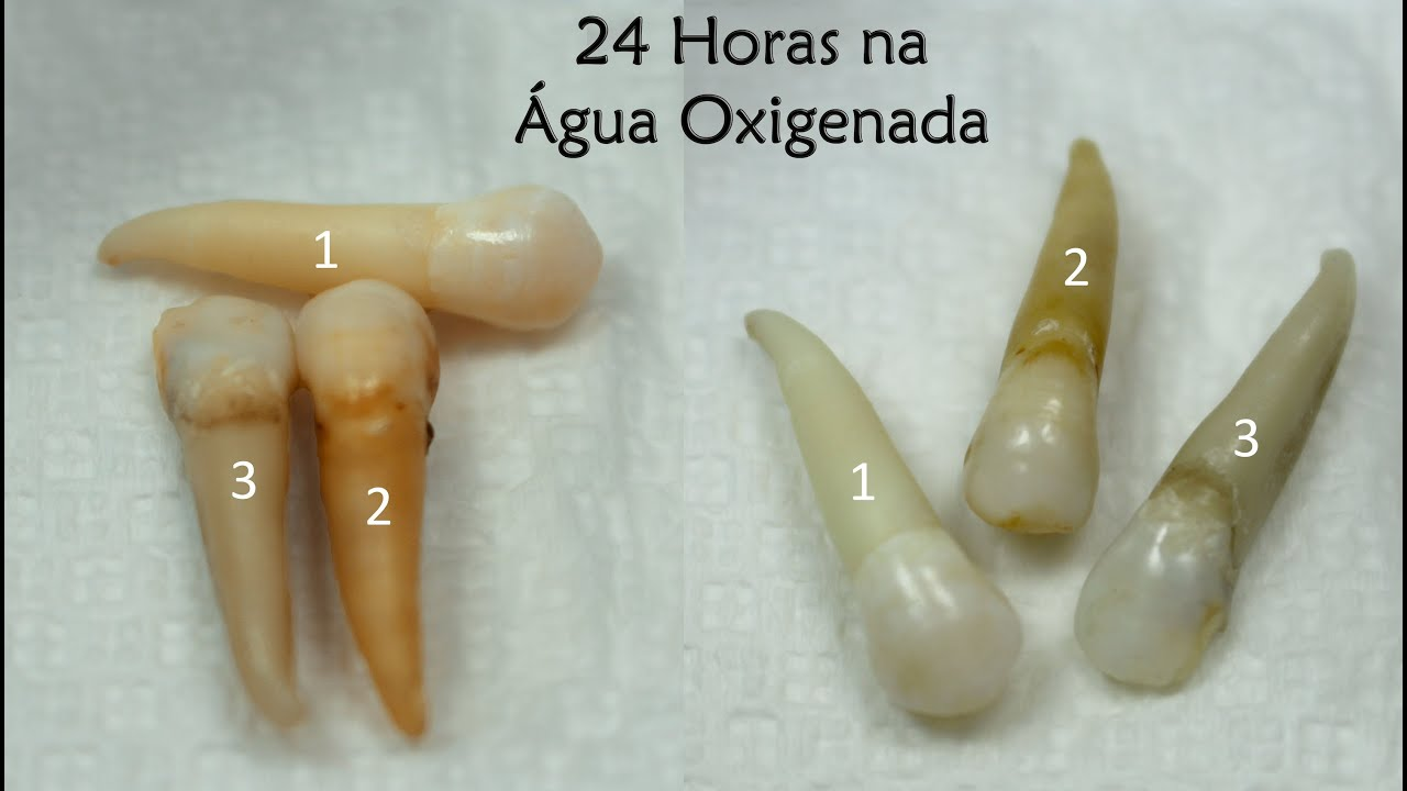 Clareamento Dental Com Agua Oxigenada Experimento Youtube