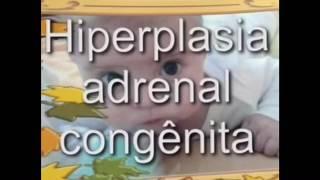 SOMATIC GENDER: CONGENITAL ADRENAL HYPERPLASIA.