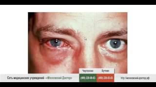 видео Аллергия на глазах, симптомы, причины, лечение