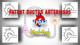 Patent Ductus Arteriosus.