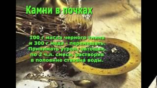 Черный тмин-лекарство от всех болезней. Медицина Пророка. Лечение почек.(Употребление масла черного тмина уменьшает уровень содержания сахара в крови, дает прекрасные результаты..., 2016-02-01T16:19:27.000Z)