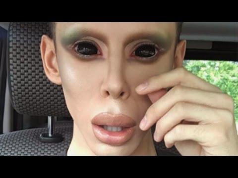 Man Undergoes 100 Procedures To Become A Genderless Alien