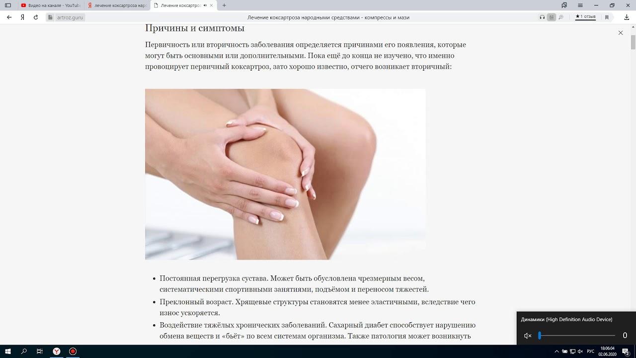 Коксартроза симптоми и лечение