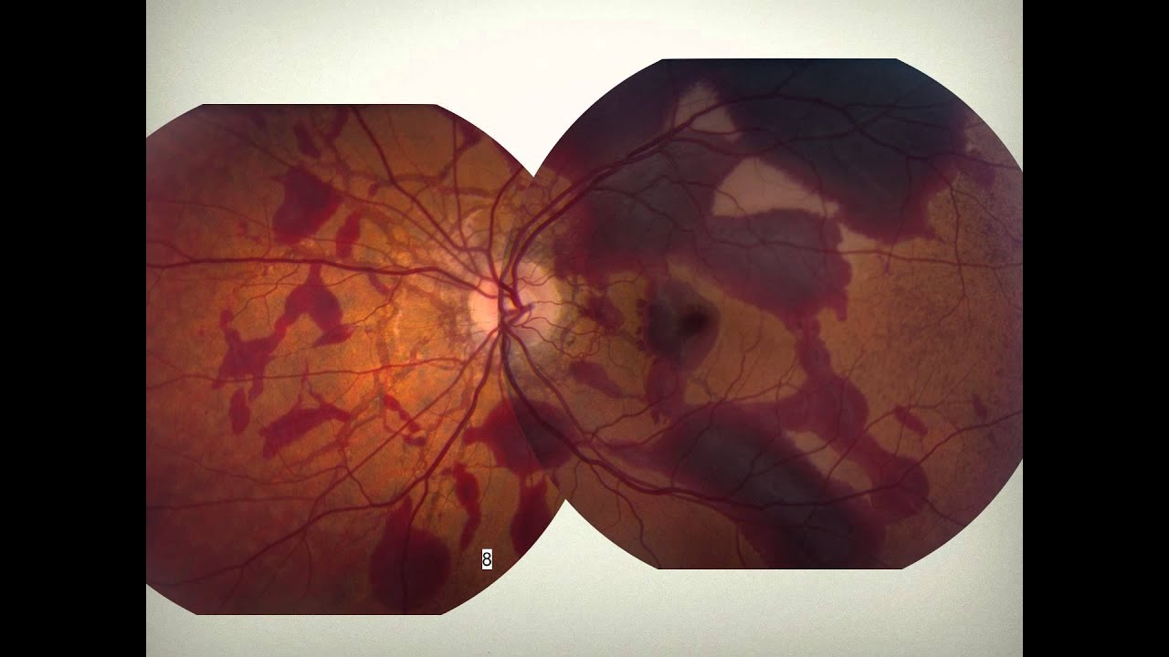 List of systemic diseases with ocular manifestations