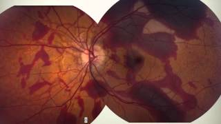 Retina and Systemic Disease Part 2