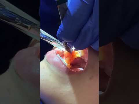 MASSIVE Buccal Fat Removal