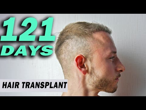 FUE Hair Transplant Day 121 (post op) Istanbul, Turkey GROWTH STAGE