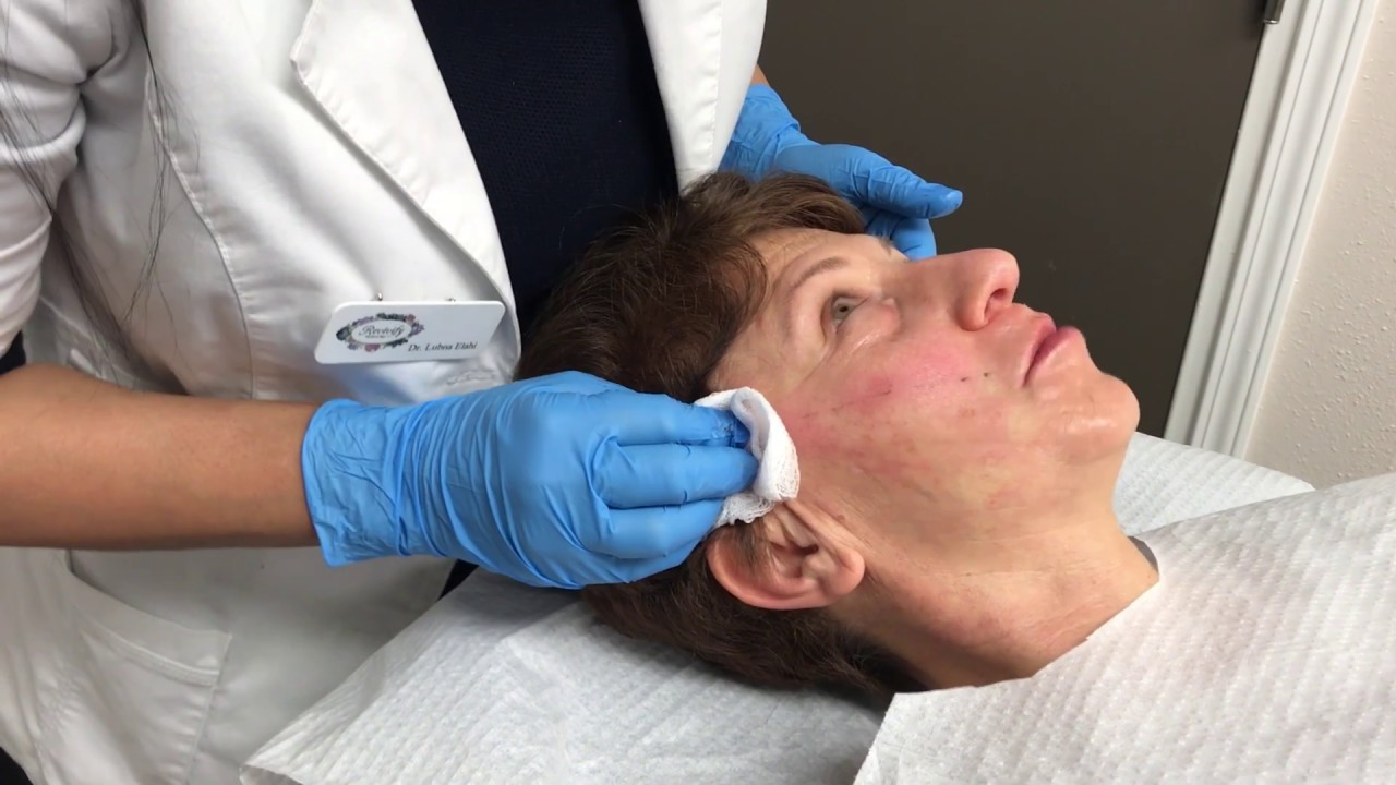 PDO Thread Lift - Non Surgical Better Than Botox - Revivify Medical Spa  Beaumont TX