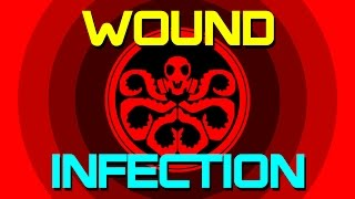 Guide to Wound Infection in DayZ | Causes, Symptoms & Cures