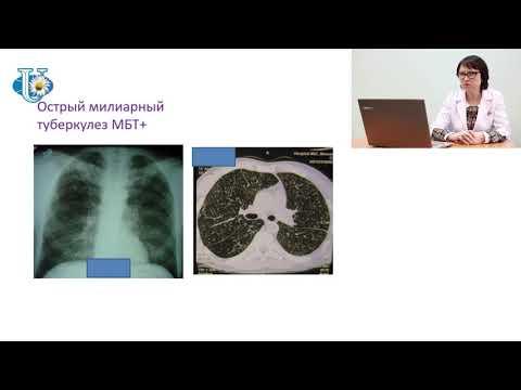 Дифференциальная диагностика диссеминированного туберкулеза