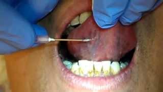 張孟超醫師-刺血療法-舌下靜脈放血法四(肺肝區)tongue bleeding