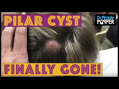 Large Pilar Cyst Finally Gone!