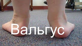 Вальгус. Вальгусная деформация стопы у детей. Мнение остеопат.