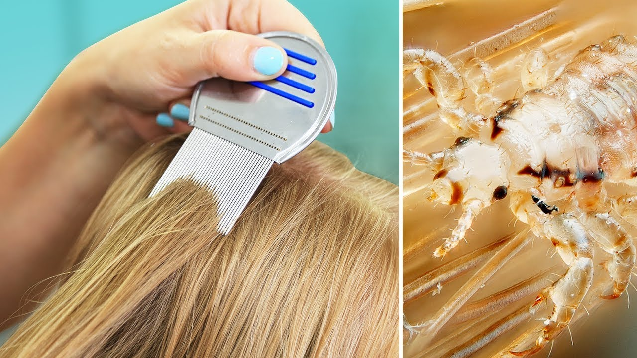 LiCE iN OUR HOUSE?  Tips for Natural Lice Removal & Treatment