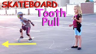 👄🏂TOOTH KNOCKED OUT WITH SKATEBOARD☠ | BLOODY MOUTH | LOST MY TOOTH | DYCHES FAM