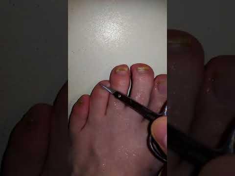 Онихомикоз (грибок ногтей): причины, симптомы и лечение