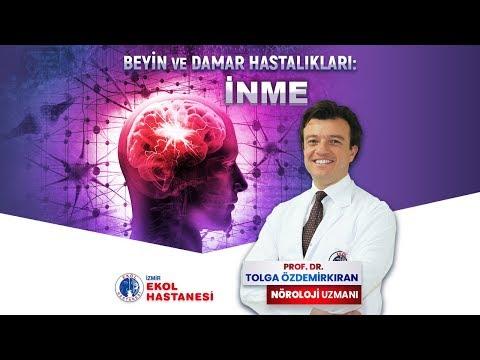 Beyin Damarı Tıkanıklığı: İnme - Prof. Dr. Tolga Özdemirkıran - İzmir Ekol Hastanesi