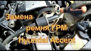 Замена ремня ГРМ Hyundai Accent  2015 Авторемонт