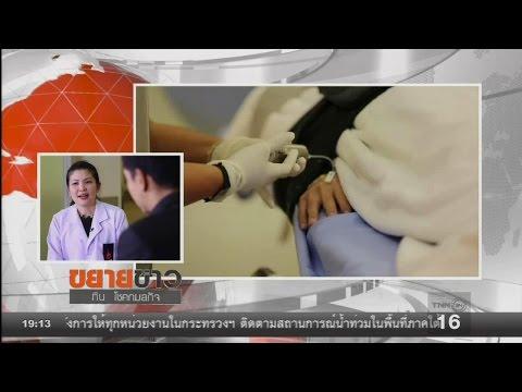 ย้อนหลัง ขยายข่าว : เพทซีที สแกน เพื่อผู้ป่วยมะเร็งต่อมน้ำเหลือง