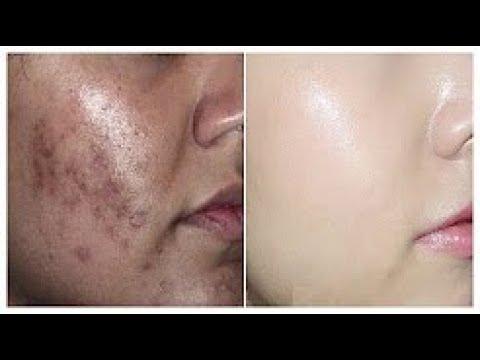 كيفية ازالة البقع الداكنة نهائيا من الوجه في 7ايام فقط بشكل طبيعي وبمكونين وصفة فعالة 100 مع جيجي Youtube