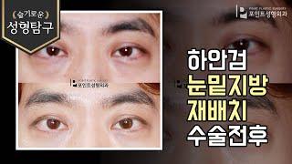 [성형기본지식] 남자하안검, 남자눈밑지방재배치
