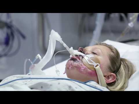 Hennepin County Medical Center Burn Unit
