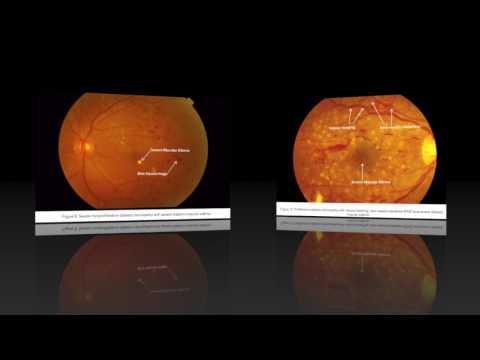 Классификация диабетической ретинопатии | диабетическая | ретинопатия | classification | retinopathy | diabetic | of