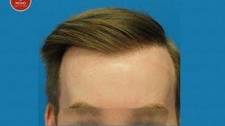 Hair Transplant-Hair transplant Results-Hasson & Wong