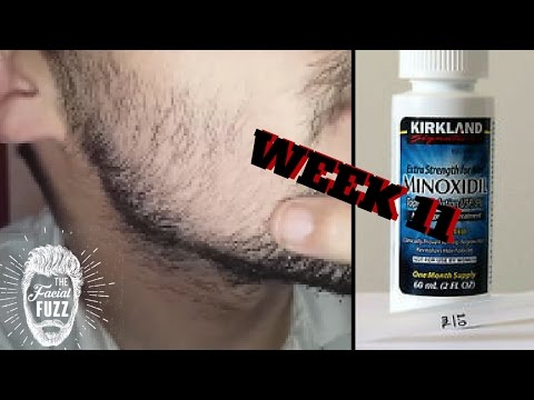 Minoxidil Beard | Week 11 | The Experiment |  #FacialFuzzFridays