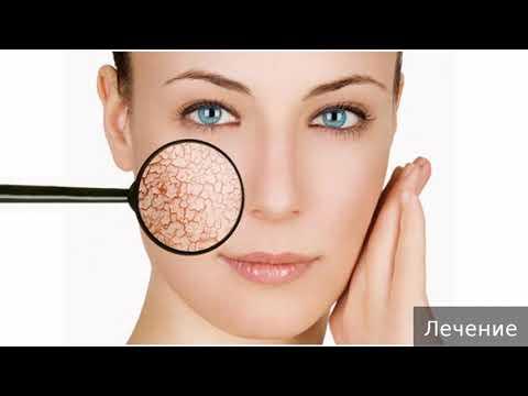 Кандидоз кожи. Как лечить кандидоз кожи.