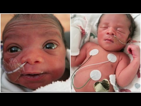 """""""THE CUTEST BABIES IN THE NICU!"""" 