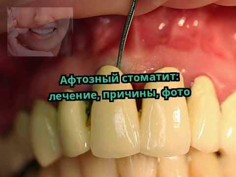 катаральный стоматит у детей лечение фото