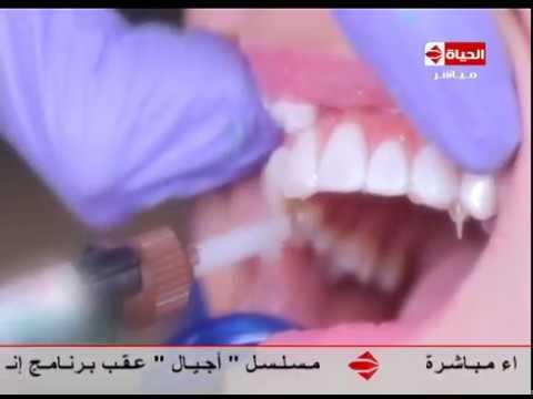 779f68f58 إنتبهوا أيها السادة - د/ هشام السباعي ... العدسات اللاصقة للأسنان