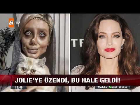 Angelina Jolie'ye Benzemek İçin Sayısız Ameliyat Geçiren İranlı Kadın