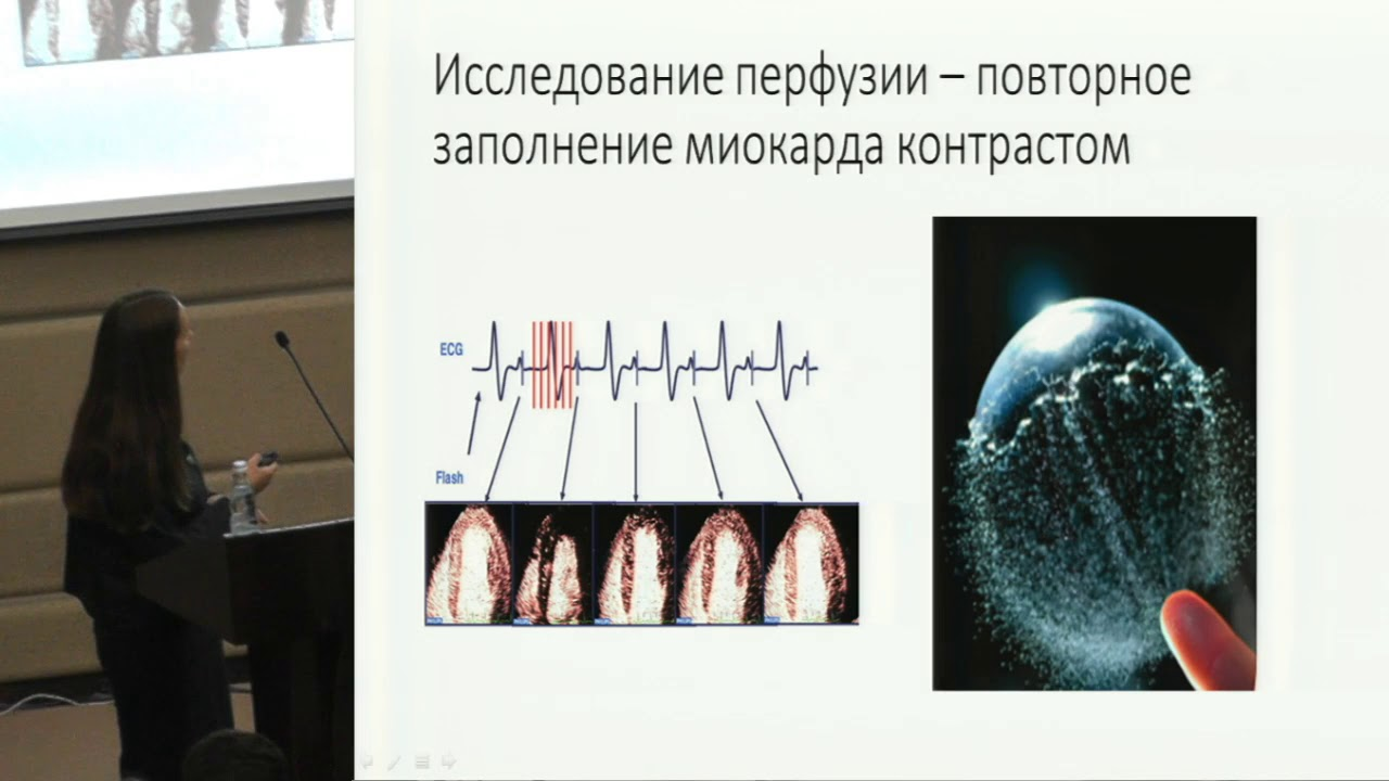 О.В. Терешина, Новые технологии в эхокардиографии...