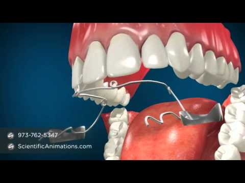 Jaw Surgery for Teeth Alignment - Fixing Jaw Braces