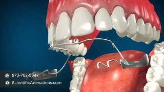 Jaw Surgery Teeth Alignment