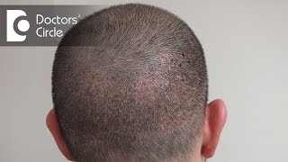 What all one should avoid after Hair Transplant surgery? - Dr. Harish Prasad B R