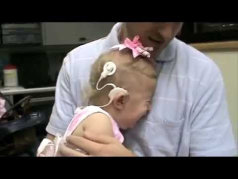 Cochlear Implants: People hearing for the first time!
