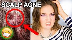 hqdefault - Good Shampoos For Scalp Acne