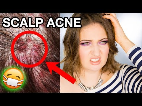 hqdefault - Acne In Your Scalp
