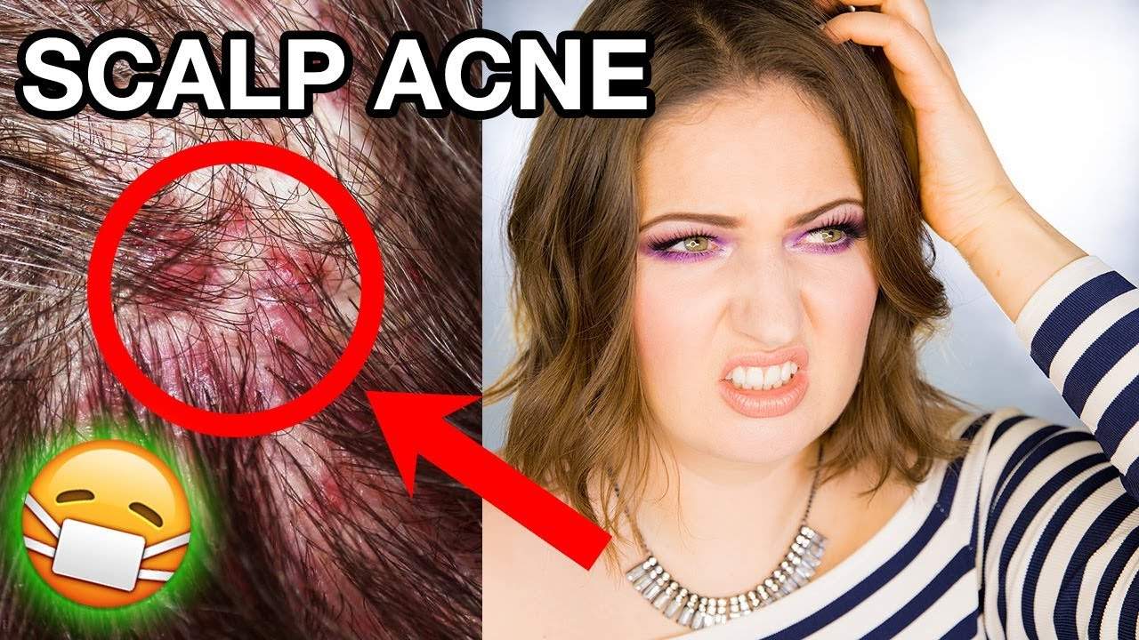Scalp Acne Dandruff How I Got Rid Of It Completely Youtube