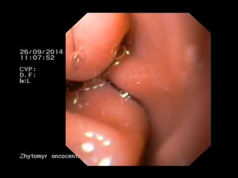 Аберрантный проток поджелудочной железы