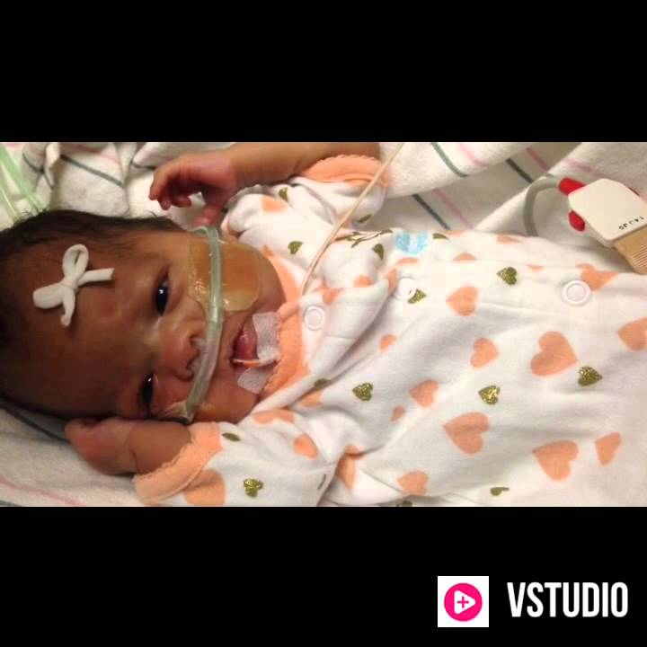 Miracle premature baby born at 23 weeks and 4 days. Now 35 weeks!