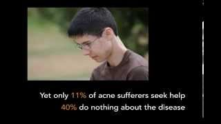 Theraclear Acne Therapy Patient Testimonials