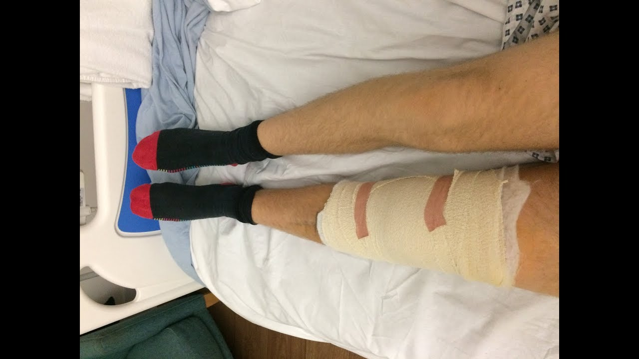 ACL and Meniscus Surgery - Road to recovery The Starting ...